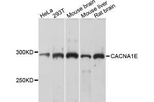 Image no. 1 for anti-Calcium Channel, Voltage-Dependent, R Type, alpha 1E Subunit (CACNA1E) antibody (ABIN6566810)