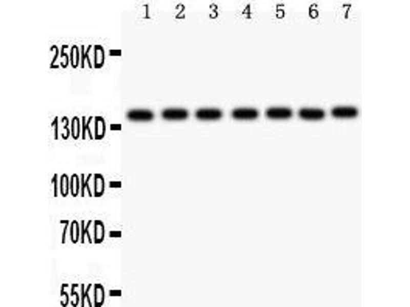 Western Blotting (WB) image for anti-PARP1 Antikörper (Poly (ADP-Ribose) Polymerase 1) (AA 670-858) (ABIN3043378)