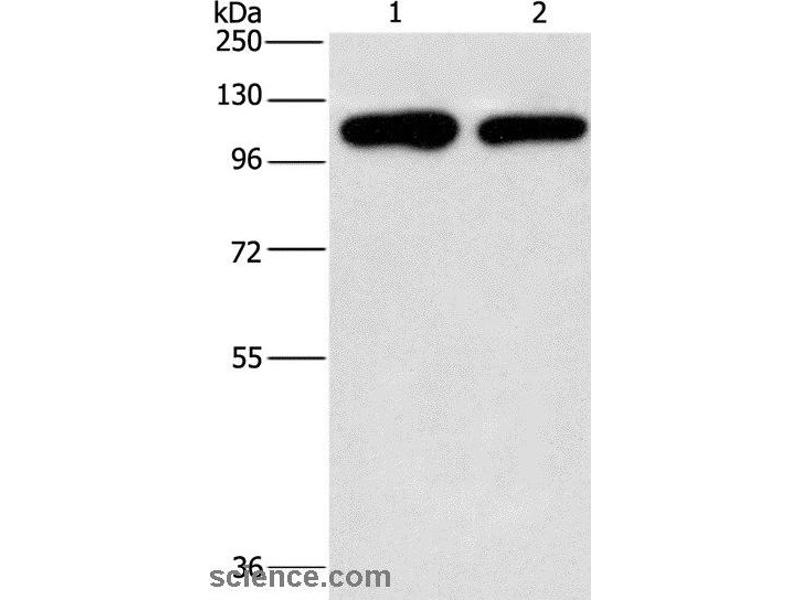 Western Blotting (WB) image for anti-PIP5K1C antibody (Phosphatidylinositol-4-Phosphate 5-Kinase, Type I, gamma) (ABIN2432569)