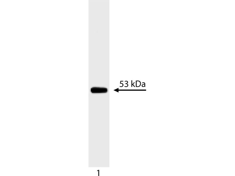 Western Blotting (WB) image for anti-Tumor Protein P53 (TP53) (AA 14-289) antibody (ABIN967419)