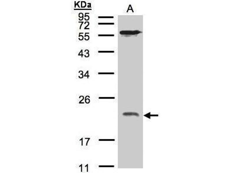 Western Blotting (WB) image for anti-ADP-Ribosylation Factor 1 (ARF1) (Center) antibody (ABIN2855948)