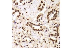 Image no. 13 for anti-Acidic (Leucine-Rich) Nuclear phosphoprotein 32 Family, Member A (ANP32A) antibody (ABIN6136909)