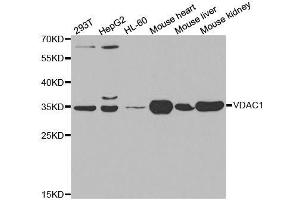 Image no. 4 for anti-Voltage-Dependent Anion Channel 1 (VDAC1) antibody (ABIN3021131)