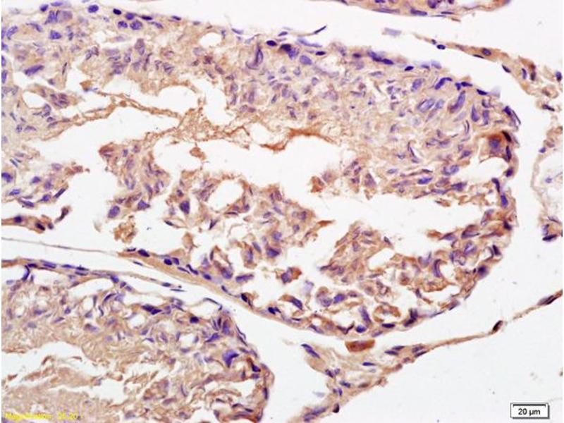 Immunohistochemistry (IHC) image for anti-Interferon alpha/beta Receptor 2 (IFNAR2) (AA 180-230) antibody (ABIN721825)