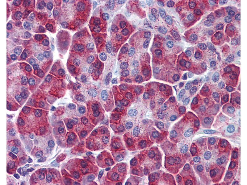 Immunohistochemistry (IHC) image for anti-Sequestosome 1 (SQSTM1) (AA 323-372) antibody (ABIN768977)
