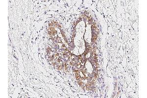 Image no. 2 for anti-Toll-Like Receptor 6 (TLR6) (Center) antibody (ABIN2682652)