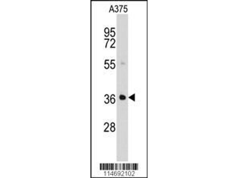 Western Blotting (WB) image for anti-Aldo-Keto Reductase Family 1, Member B1 (Aldose Reductase) (AKR1B1) (AA 290-316), (C-Term) antibody (ABIN389205)
