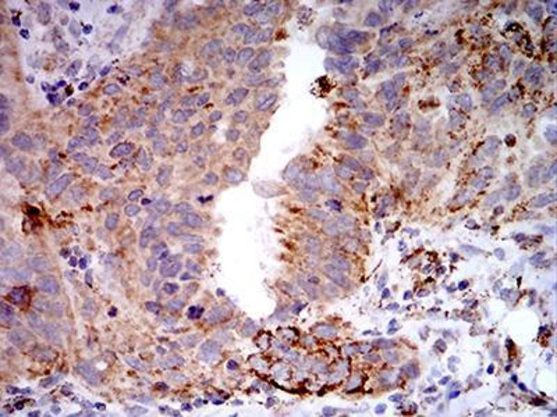 Immunohistochemistry (IHC) image for anti-Toll-Like Receptor 9 (TLR9) (AA 868-1016) antibody (ABIN5542492)