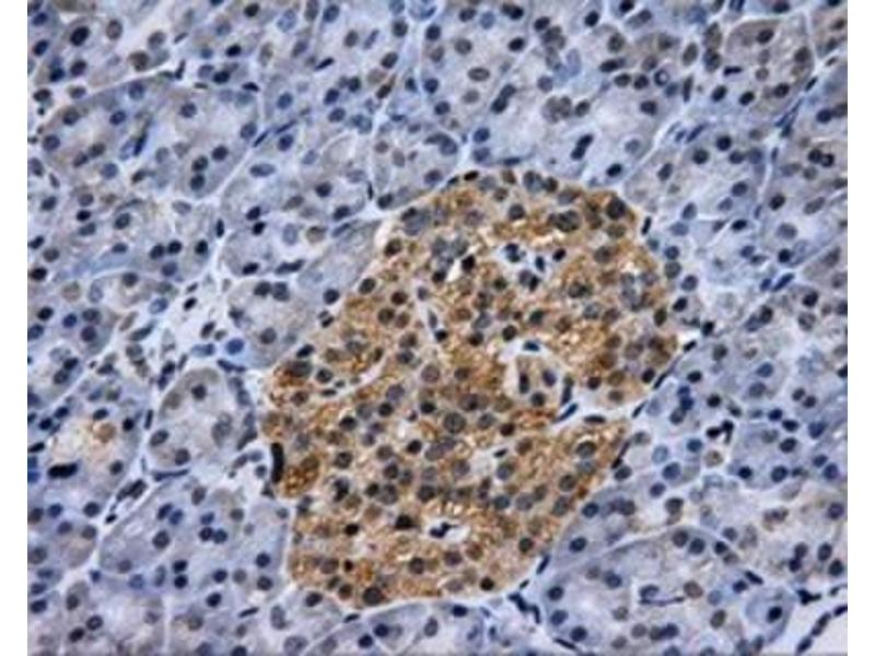 Immunohistochemistry (Paraffin-embedded Sections) (IHC (p)) image for anti-Hexokinase 2 (HK2) antibody (ABIN4317175)