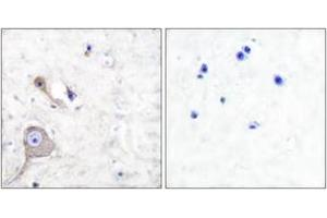 Image no. 2 for anti-S100 Calcium Binding Protein A1 (S100A1) (AA 10-59) antibody (ABIN1533394)