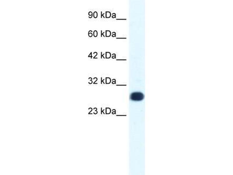 Western Blotting (WB) image for anti-General Transcription Factor IIF, Polypeptide 2, 30kDa (GTF2F2) (Middle Region) antibody (ABIN1107469)