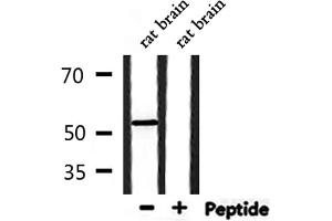 Image no. 1 for anti-Protein Kinase, CAMP Dependent, Catalytic, beta (PRKACB) antibody (ABIN6257011)