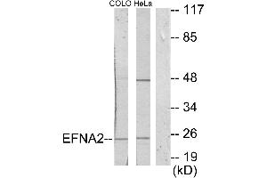Image no. 1 for anti-Ephrin A2 (EFNA2) (Internal Region) antibody (ABIN1576187)