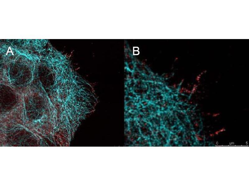 Immunofluorescence (IF) image for anti-AKT antibody (V-Akt Murine Thymoma Viral Oncogene Homolog 1) (Ser473) (ABIN400785)
