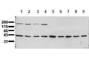 Western Blotting (WB) image for anti-MAP2K1 antibody (Mitogen-Activated Protein Kinase Kinase 1) (ABIN126835)
