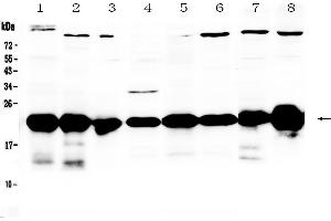 Image no. 2 for anti-Parkinson Protein 7 (PARK7) (AA 2-189) antibody (ABIN5519050)
