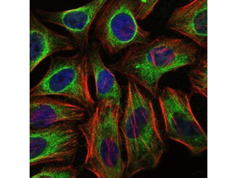 Immunocytochemistry (ICC) image for anti-Cas-Br-M (Murine) Ecotropic Retroviral Transforming Sequence (CBL) antibody (ABIN1845278)