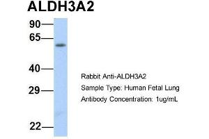 Image no. 3 for anti-Aldehyde Dehydrogenase 3 Family, Member A2 (ALDH3A2) (Middle Region) antibody (ABIN2781792)