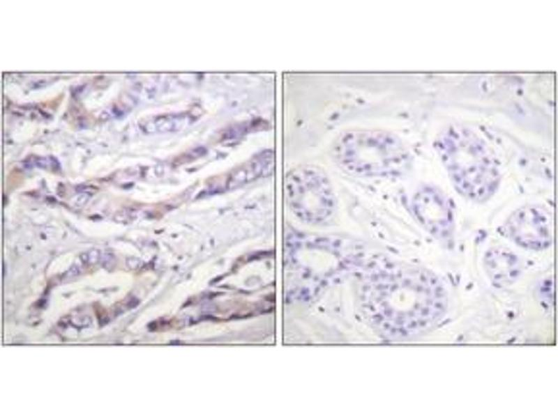 Immunohistochemistry (IHC) image for anti-Ribosomal Protein S6 Kinase, 70kDa, Polypeptide 1 (RPS6KB1) (AA 355-404), (pThr412) antibody (ABIN1531360)