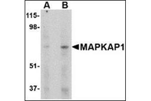 Western Blotting (WB) image for anti-Transportin 1 antibody (TNPO1) (Center) (ABIN500232)