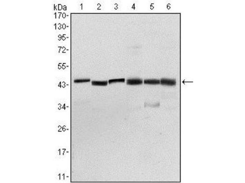Western Blotting (WB) image for anti-3-phosphoinositide Dependent Protein Kinase-1 (PDPK1) antibody (ABIN4344574)