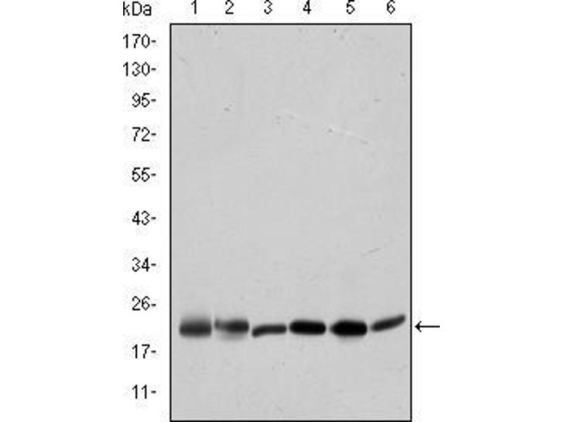 Western Blotting (WB) image for anti-BID antibody (BH3 Interacting Domain Death Agonist) (ABIN968979)