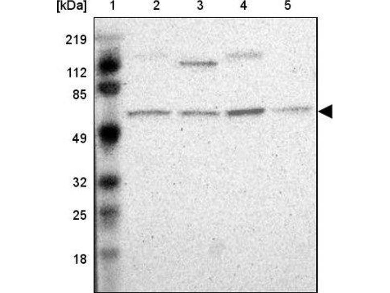 Image no. 3 for anti-Apolipoprotein B mRNA Editing Enzyme, Catalytic Polypeptide-Like 3G (APOBEC3G) antibody (ABIN4281137)