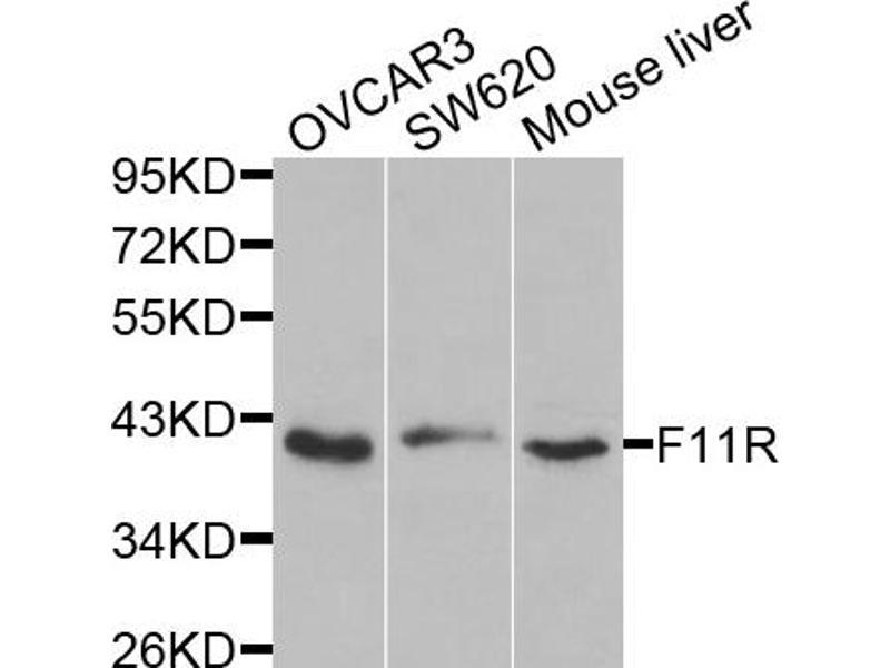 Image no. 2 for anti-F11 Receptor (F11R) antibody (ABIN6567453)