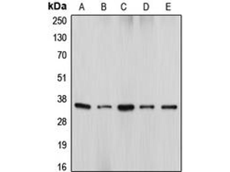 Western Blotting (WB) image for anti-DNA Fragmentation Factor, 45kDa, alpha Polypeptide (DFFA) (Center) antibody (ABIN2706027)