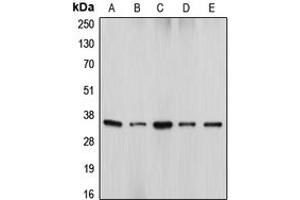 Western Blotting (WB) image for anti-DFFA antibody (DNA Fragmentation Factor, 45kDa, alpha Polypeptide) (Center) (ABIN2706027)