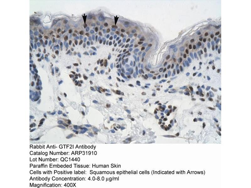 Image no. 3 for anti-General Transcription Factor III (GTF2I) (N-Term) antibody (ABIN2777491)