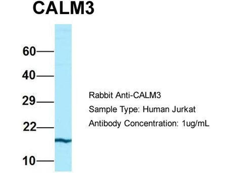 Western Blotting (WB) image for anti-Calmodulin 3 (Phosphorylase Kinase, Delta) (CALM3) (N-Term) antibody (ABIN2774263)