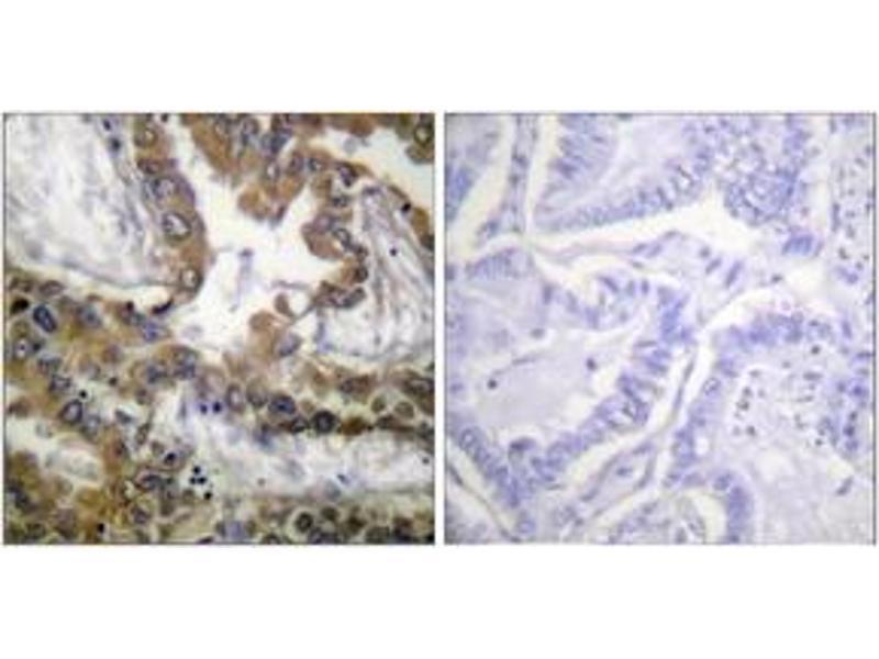 Immunohistochemistry (IHC) image for anti-Kinase insert Domain Receptor (A Type III Receptor tyrosine Kinase) (KDR) (AA 1020-1069) antibody (ABIN1532661)