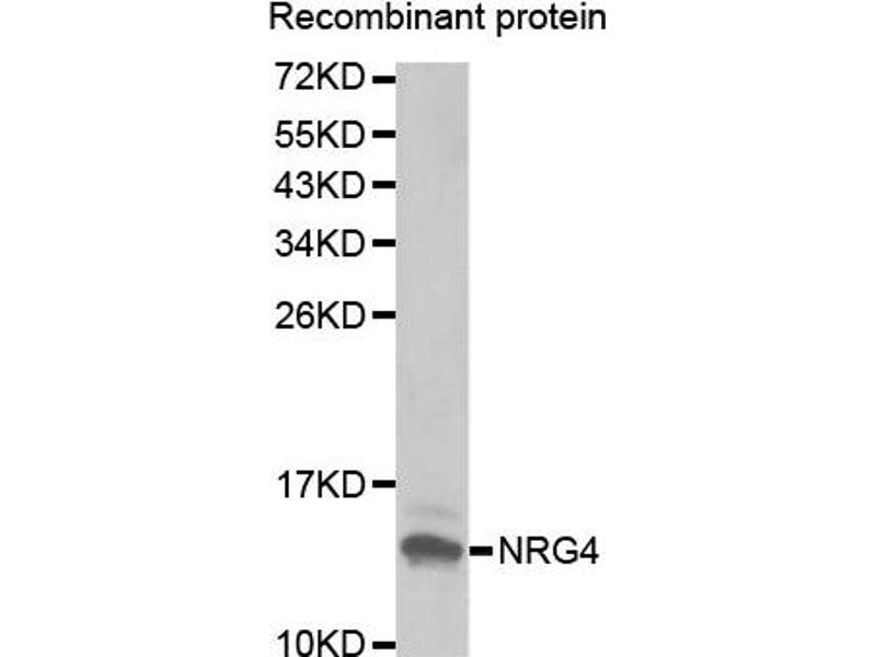 Western Blotting (WB) image for anti-Neuregulin 4 (NRG4) antibody (ABIN1873958)