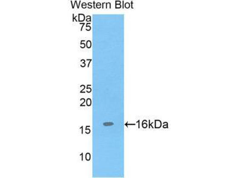 Western Blotting (WB) image for anti-ADAM Metallopeptidase with Thrombospondin Type 1 Motif, 7 (ADAMTS7) (AA 226-437) antibody (ABIN1857907)