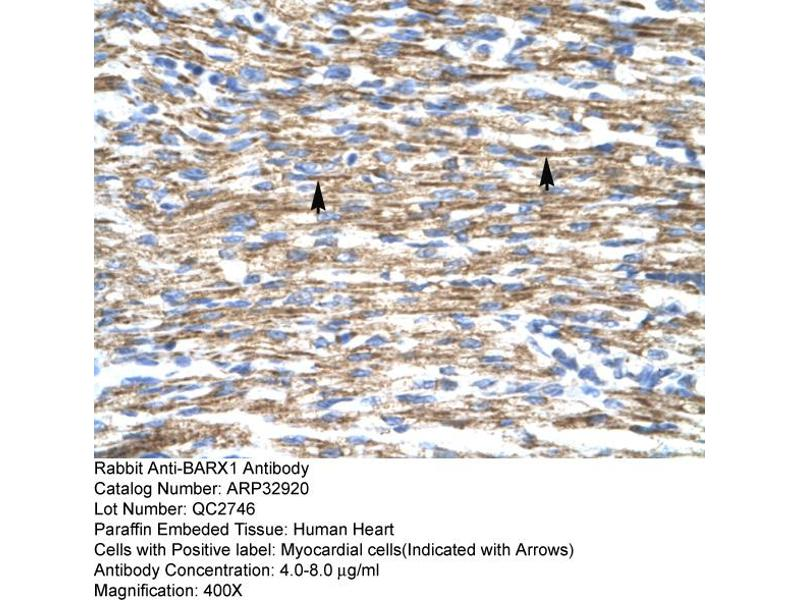 Immunohistochemistry (IHC) image for anti-BARX Homeobox 1 (BARX1) (Middle Region) antibody (ABIN2777664)