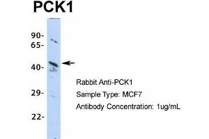 Image no. 5 for anti-phosphoenolpyruvate Carboxykinase 1 (Soluble) (PCK1) (Middle Region) antibody (ABIN2777603)