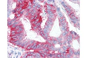 Image no. 2 for anti-G Protein-Coupled Receptor 31 (GPR31) (Extracellular Domain) antibody (ABIN1048797)