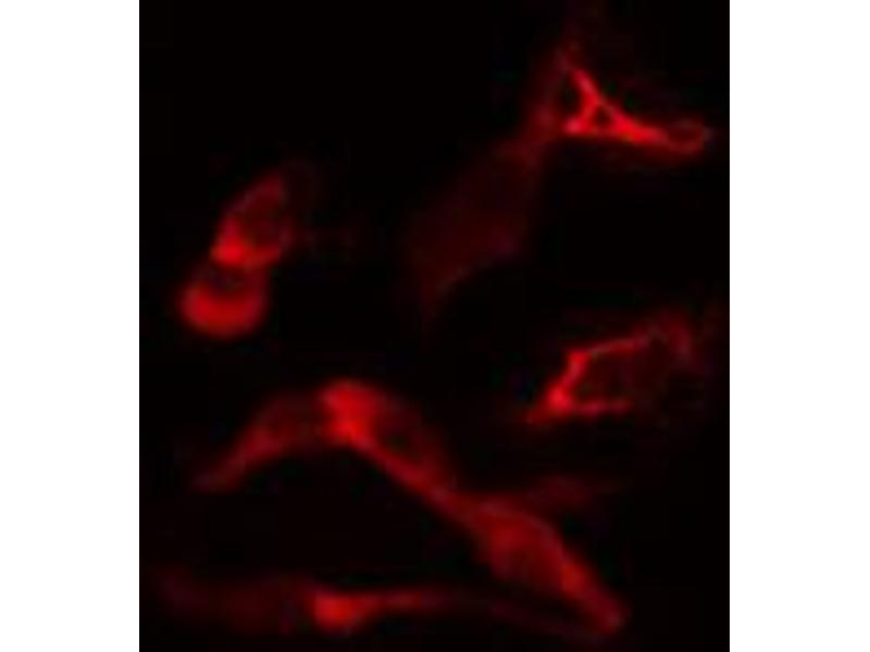 Immunofluorescence (fixed cells) (IF/ICC) image for anti-Cytochrome P450, Family 19, Subfamily A, Polypeptide 1 (CYP19A1) antibody (ABIN6257945)
