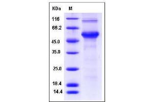 Image no. 1 for Cyclin D Binding Myb-Like Transcription Factor 1 (DMTF1) (AA 1-513) (Active) protein (His tag) (ABIN2004896)