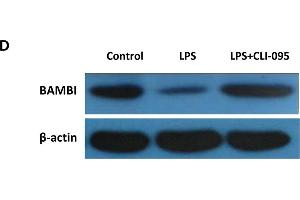 Image no. 6 for anti-BMP and Activin Membrane-Bound Inhibitor Homolog (BAMBI) (AA 101-200) antibody (ABIN1714490)