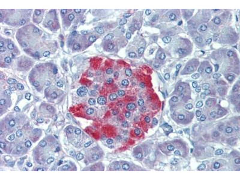 Immunohistochemistry (Paraffin-embedded Sections) (IHC (p)) image for anti-Ribosomal Protein S6 Kinase, 90kDa, Polypeptide 3 (RPS6KA3) (AA 604-617) antibody (ABIN462362)