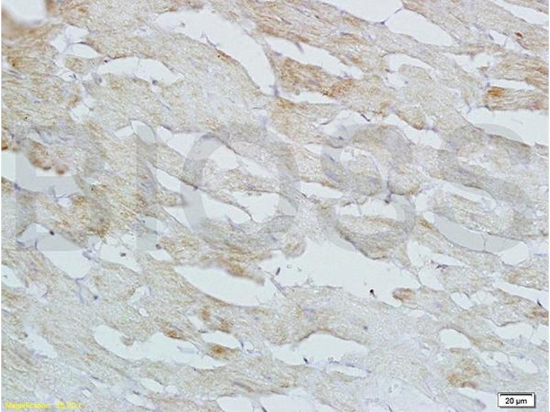 Immunohistochemistry (IHC) image for anti-Heparin-Binding EGF-Like Growth Factor (HBEGF) (AA 90-140) antibody (ABIN701050)