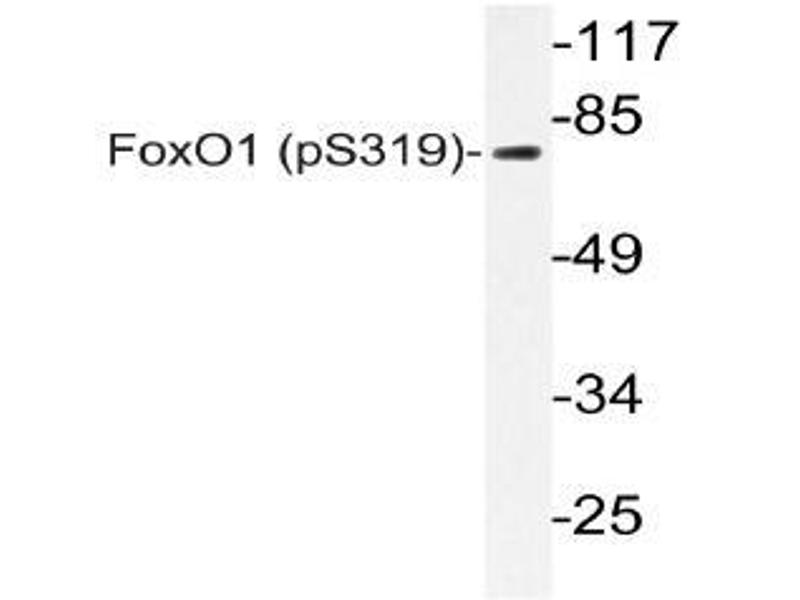 Western Blotting (WB) image for anti-FOXO1 antibody (Forkhead Box O1) (pSer319) (ABIN498702)