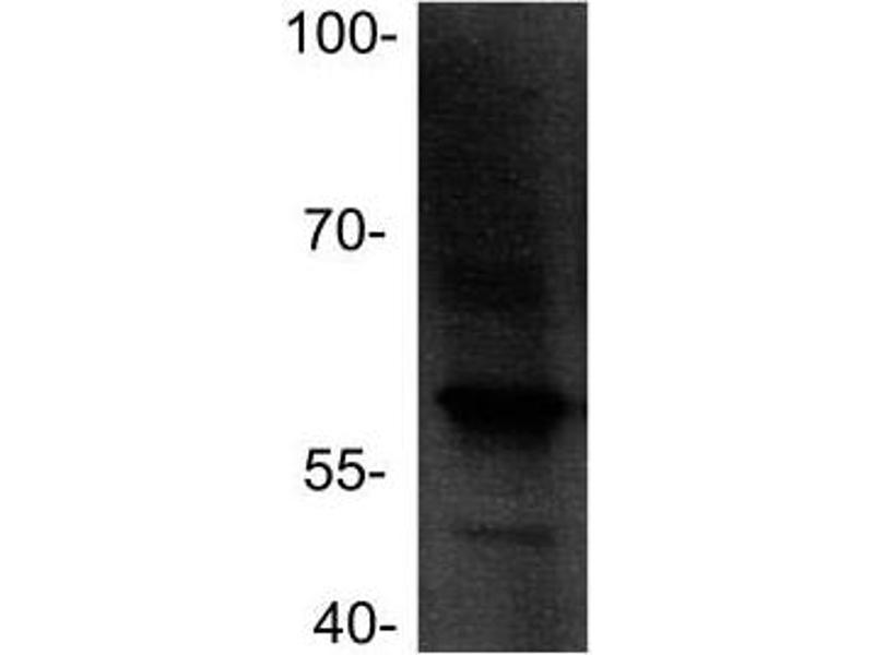 Western Blotting (WB) image for anti-Cyclin A1 (CCNA1) antibody (ABIN315428)