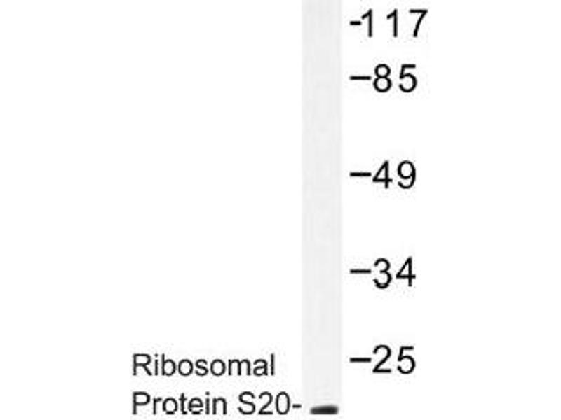 image for anti-Ribosomal Protein S20 (RPS20) antibody (ABIN317813)
