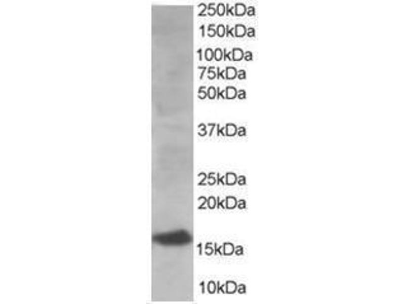 Image no. 1 for anti-Ubiquitin-Conjugating Enzyme E2I (UBE2I) (N-Term) antibody (ABIN782921)