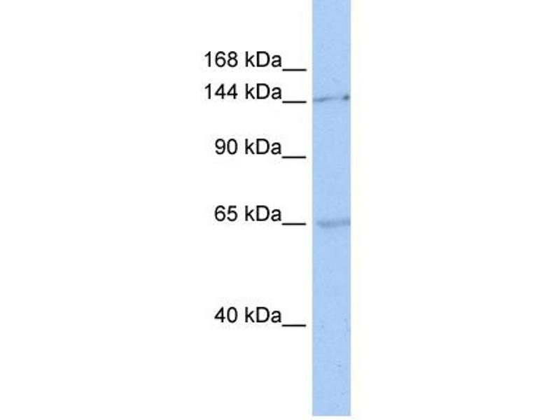 Western Blotting (WB) image for anti-Structural Maintenance of Chromosomes 1A (SMC1A) (C-Term) antibody (ABIN501738)