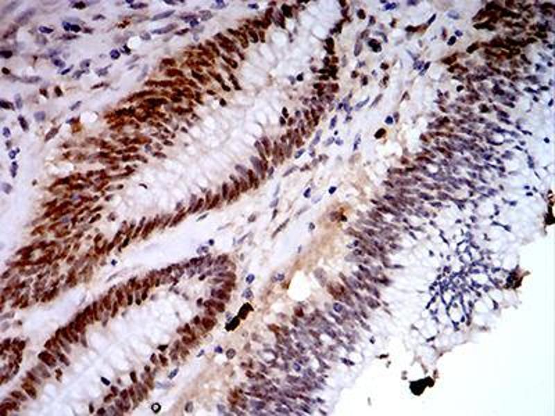 Immunohistochemistry (IHC) image for anti-Lysine (K)-Specific Demethylase 1A (KDM1A) (AA 55-263) antibody (ABIN5542576)