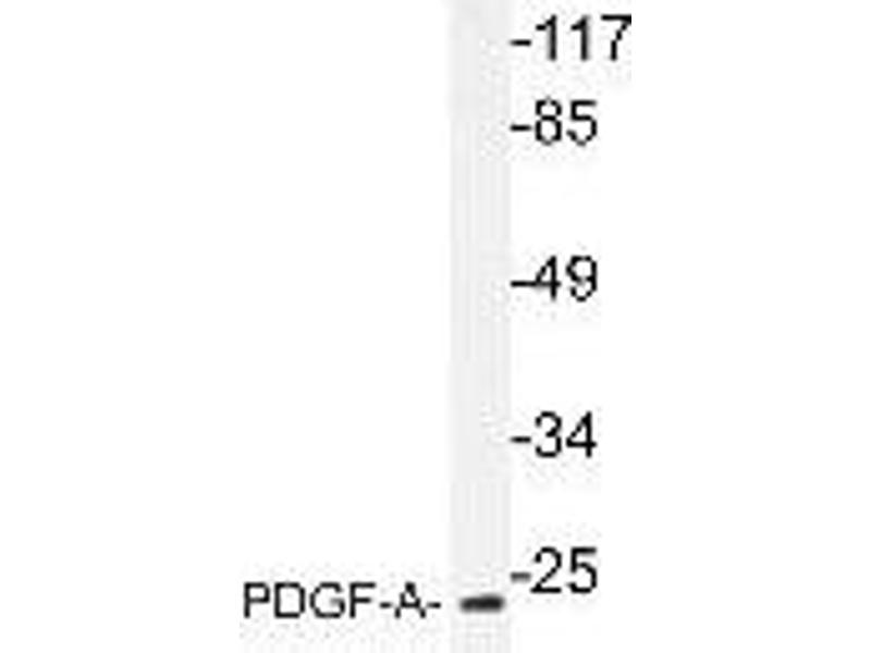 Western Blotting (WB) image for anti-Platelet-Derived Growth Factor alpha Polypeptide (PDGFA) antibody (ABIN446973)